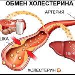Высокий холестерин: что делать, и нужны ли таблетки?